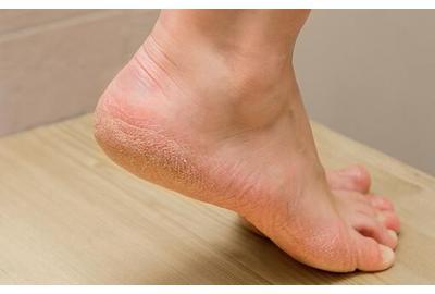 Last van eelt op je voeten?